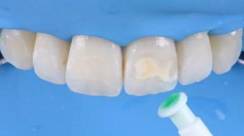 Zahnärztin Icon-Behandlung